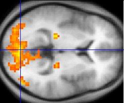 fMRIのイメージ画像